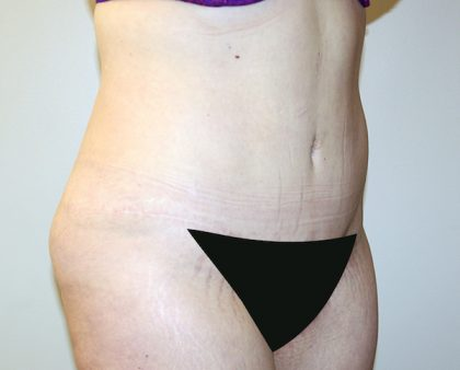 Tummy Tuck Before & After Patient #442