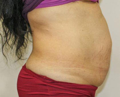 Tummy Tuck Before & After Patient #373