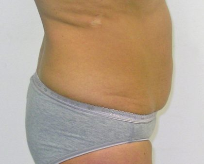Tummy Tuck Before & After Patient #380
