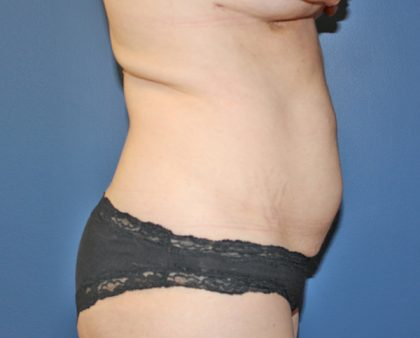 Tummy Tuck Before & After Patient #387