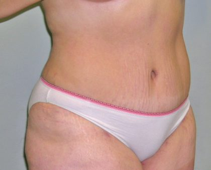 Tummy Tuck Before & After Patient #394