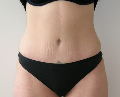 Tummy Tuck Before & After Patient #401
