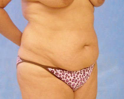 Tummy Tuck Before & After Patient #417