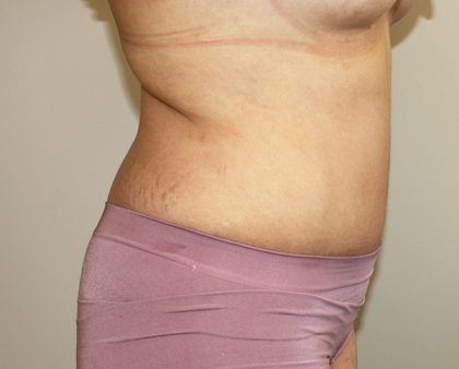 Tummy Tuck Before & After Patient #366