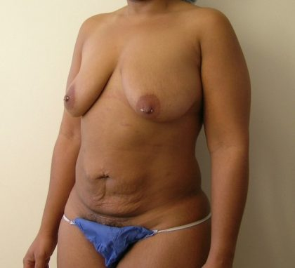 Tummy Tuck Before & After Patient #435