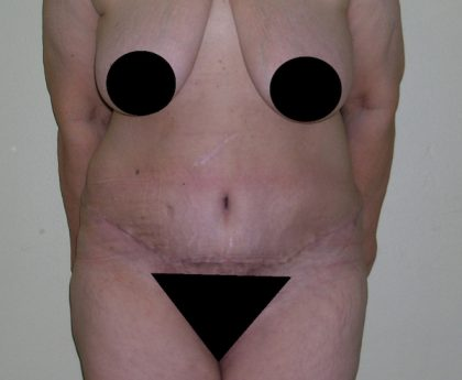 Tummy Tuck Before & After Patient #470