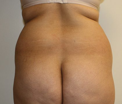 Tummy Tuck Before & After Patient #408