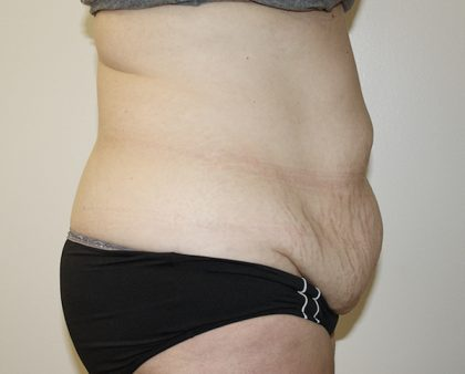 Tummy Tuck Before & After Patient #361