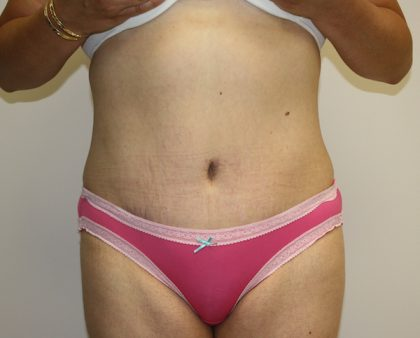 Tummy Tuck Before & After Patient #463