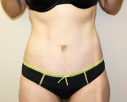 Tummy Tuck Before & After Patient #449