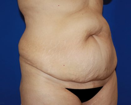 Tummy Tuck Before & After Patient #456