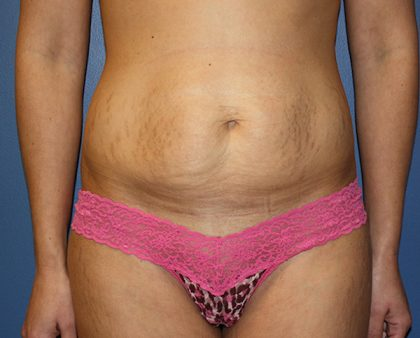 Tummy Tuck Before & After Patient #424