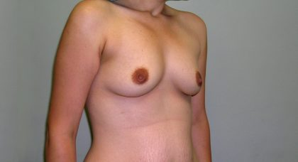 Breast Augmentation Before & After Patient #1660