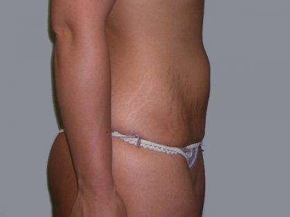 Tummy Tuck Before & After Patient #507