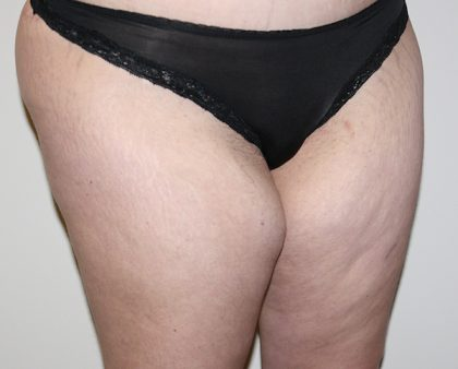 Thigh Lift Before & After Patient #1370