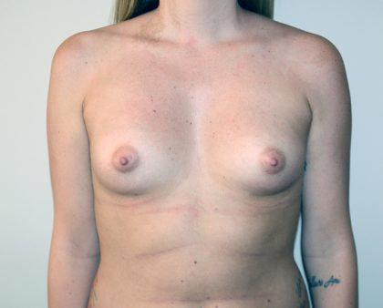 Breast Augmentation Before & After Patient #1695