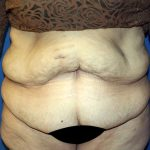 Major Weight Loss Tummy Tuck Before & After Patient #1233