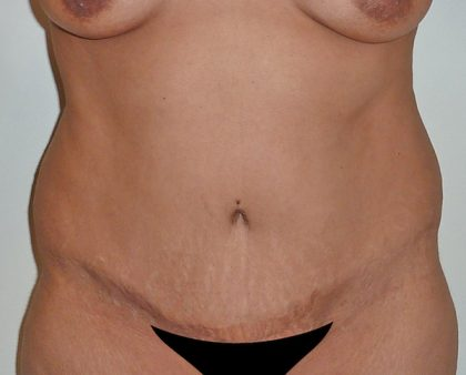 Liposuction Before & After Patient #1129