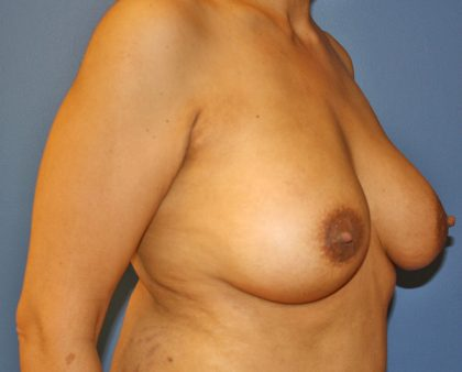 Breast Augmentation Before & After Patient #1446