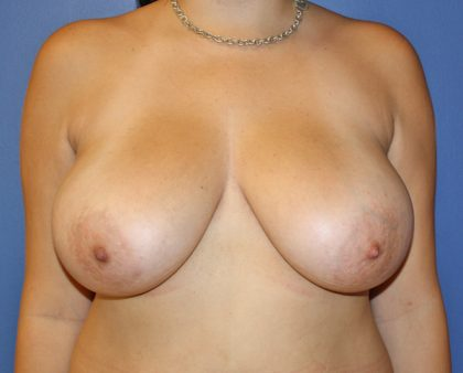 Breast Reduction Before & After Patient #947
