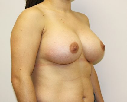 Breast Augmentation Before & After Patient #1702