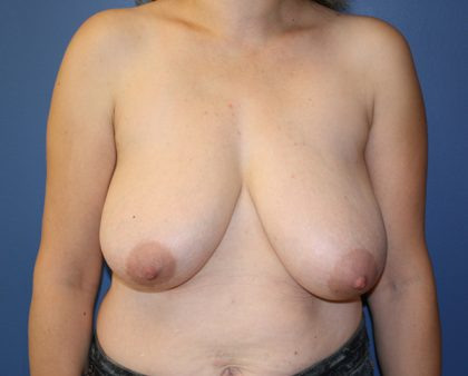 Breast Reduction Before & After Patient #883