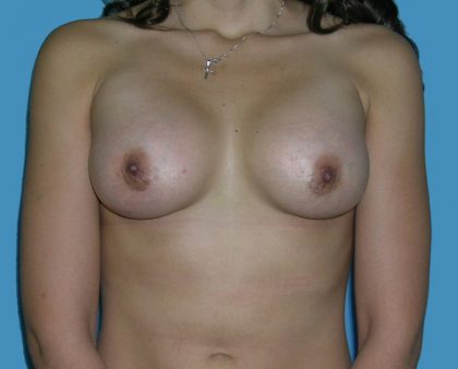 Breast Augmentation Before & After Patient #1416