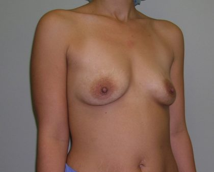 Breast Augmentation Before & After Patient #1453