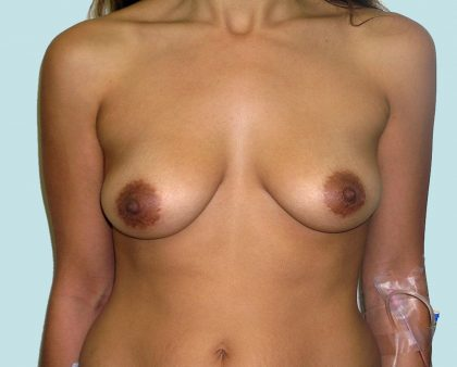 Breast Augmentation Before & After Patient #1495