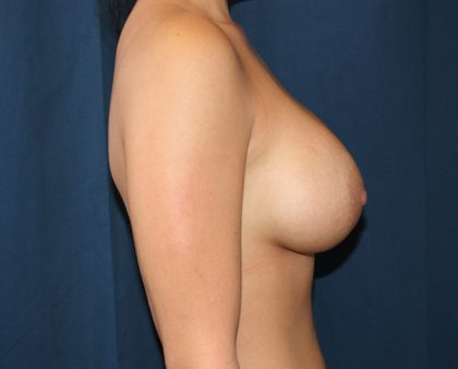 Breast Augmentation Before & After Patient #1518