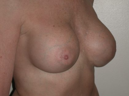 Breast Augmentation Before & After Patient #1525