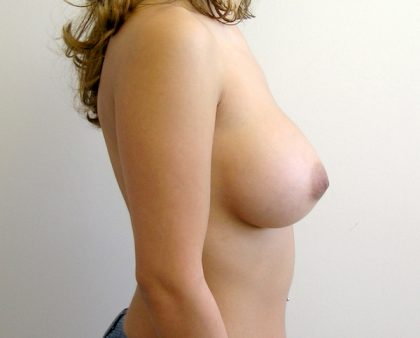 Breast Augmentation Before & After Patient #1572