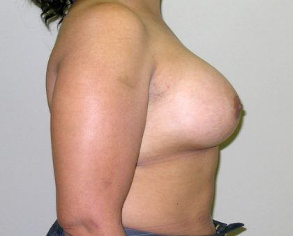 Breast Augmentation Before & After Patient #1600