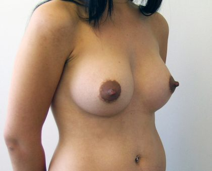 Breast Augmentation Before & After Patient #1614