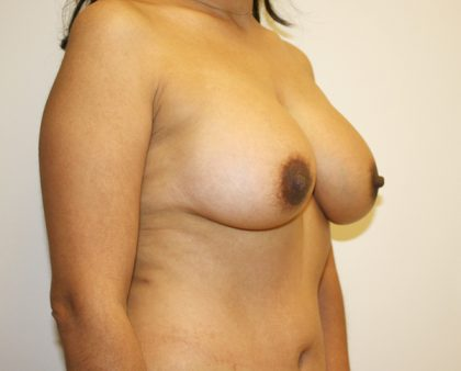 Breast Augmentation Before & After Patient #1642