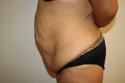 Tummy Tuck Before & After Patient #698