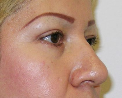 Eyelid Surgery Before & After Patient #726