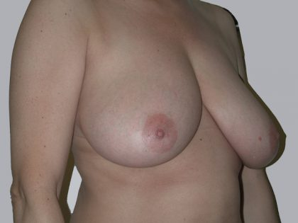 Breast Reduction Before & After Patient #933