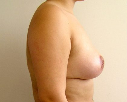 Breast Lift Before & After Patient #841