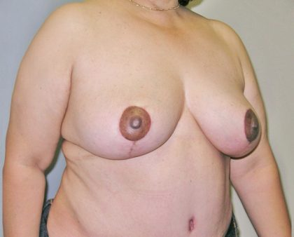 Breast Lift Before & After Patient #848