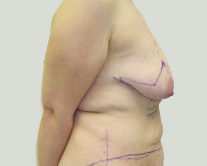 Breast Lift Before & After Patient #869