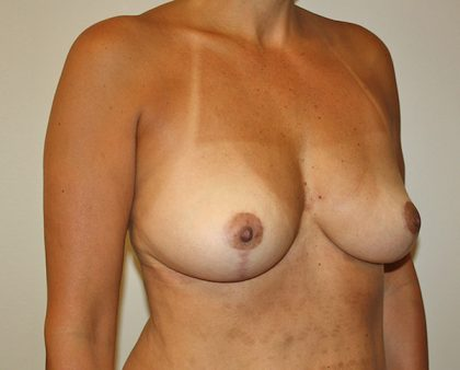 Breast Revision Before & After Patient #1038