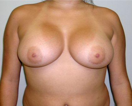 Breast Augmentation Before & After Patient #1537