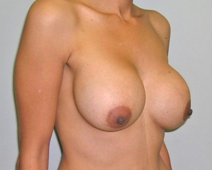 Breast Revision Before & After Patient #1045