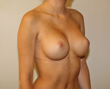 Breast Augmentation Before & After Patient #1586
