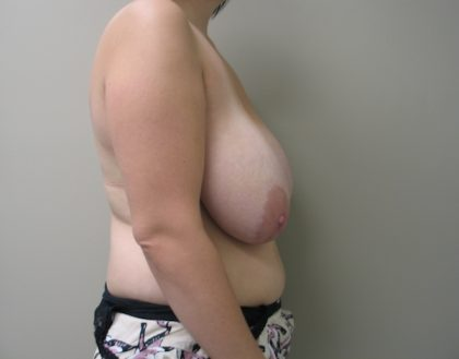 Breast Reduction Before & After Patient #926