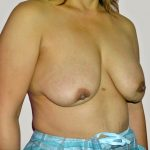 Breast Revision Before & After Patient #1052