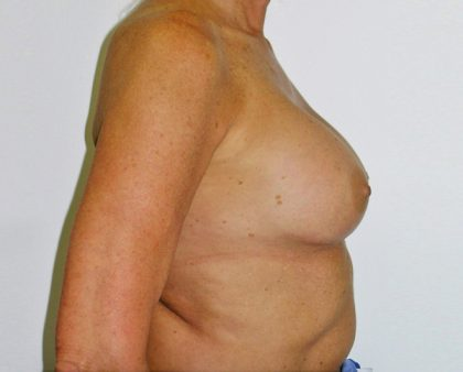 Breast Revision Before & After Patient #1059