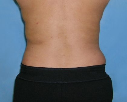 Liposuction Before & After Patient #1136