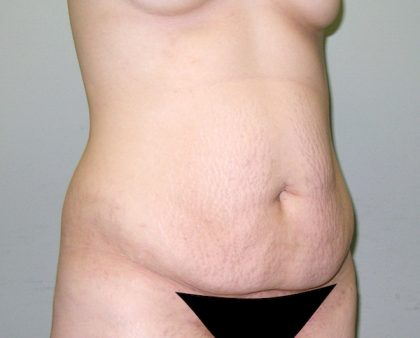 Tummy Tuck Before & After Patient #602